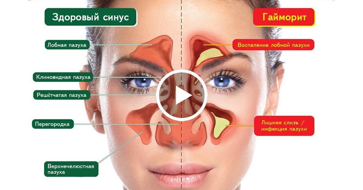 гипертрофия носовых пазух