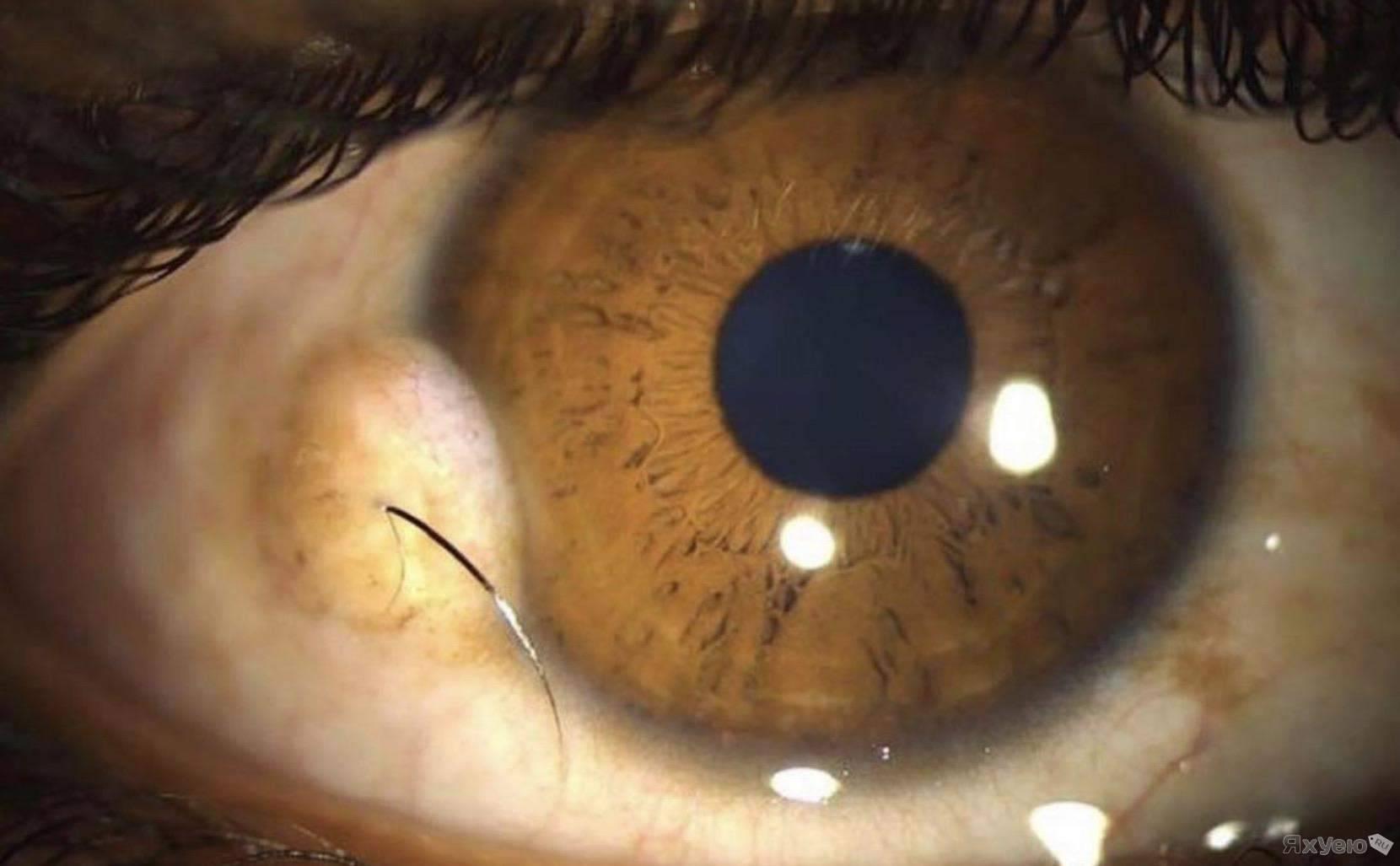 Киста глаза – причины, лечение, удаление, виды, симптомы