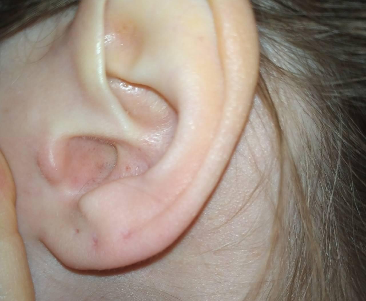 Отит среднего уха у ребенка: симптомы и лечение, особенности острой и катаральной, серозной, экссудативной и двусторонней форм, средства для лечения в домашних условиях