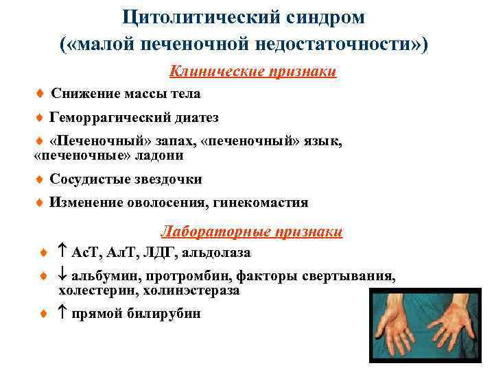 Цитолитический синдром: развитие, симптоматика, диагностика, как лечить
