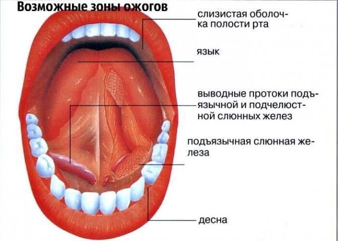 Ожоги глотки: причины заболевания, основные симптомы, лечение и профилактика