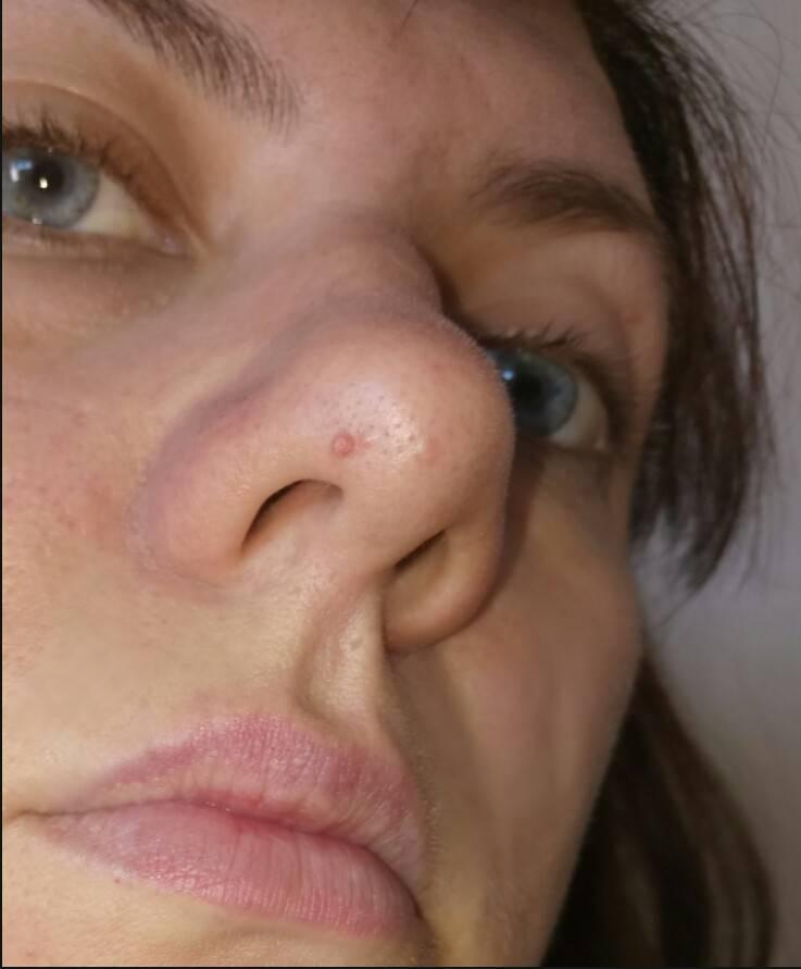 Нарост в носу