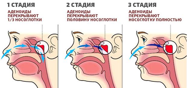Аденотомия (удаление аденоидов): эндоскопическая, шейверная, холодноплазменная
