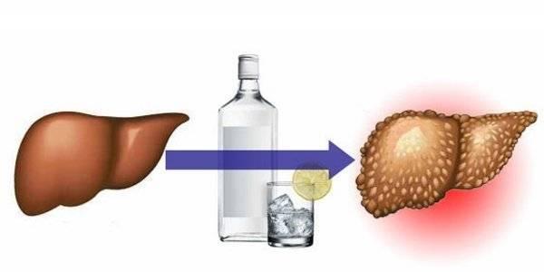 Как восстановить печень после употребления алкоголя?