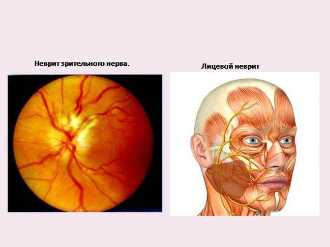 Как проявляется воспаление зрительного нерва: характерные симптомы, лечение и прогноз