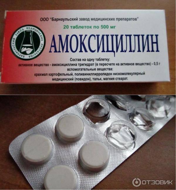 Таблетки от хронического тонзиллита