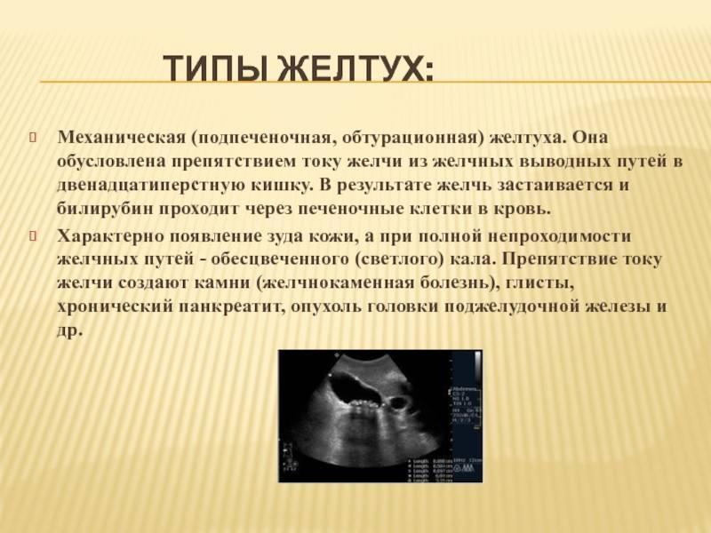 Желтуха: причины, признаки, диагностика, как ее лечить и последствия