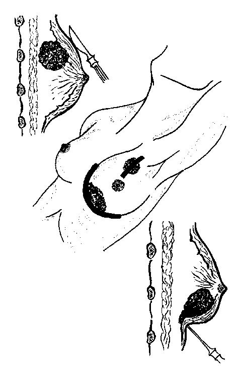 Увеличение подмышечных лимфоузлов при мастопатии: воспаление, шишки