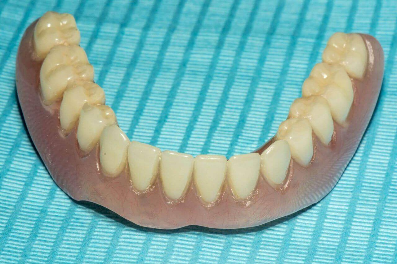 Съемные зубные протезы: какие лучше?