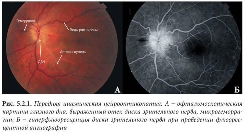 Ишемическая оптическая нейропатия задняя — википедия. что такое ишемическая оптическая нейропатия задняя