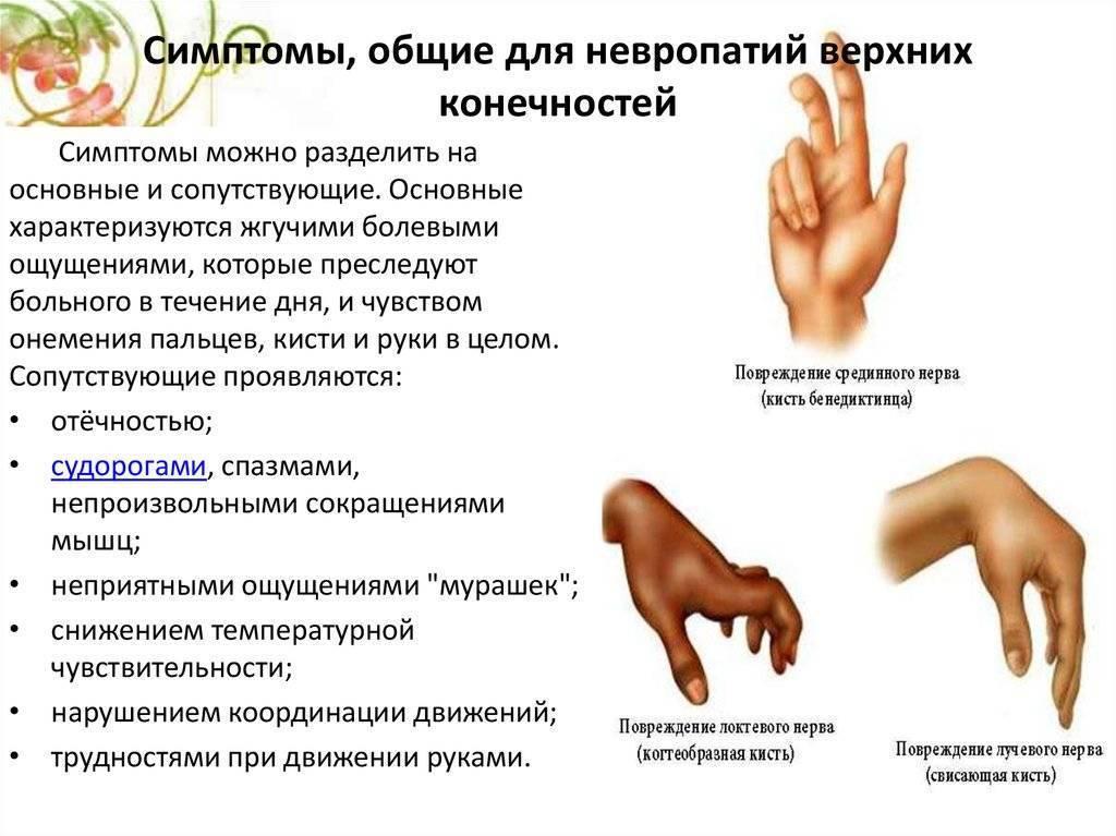 лфк при полинейропатии нижних конечностей