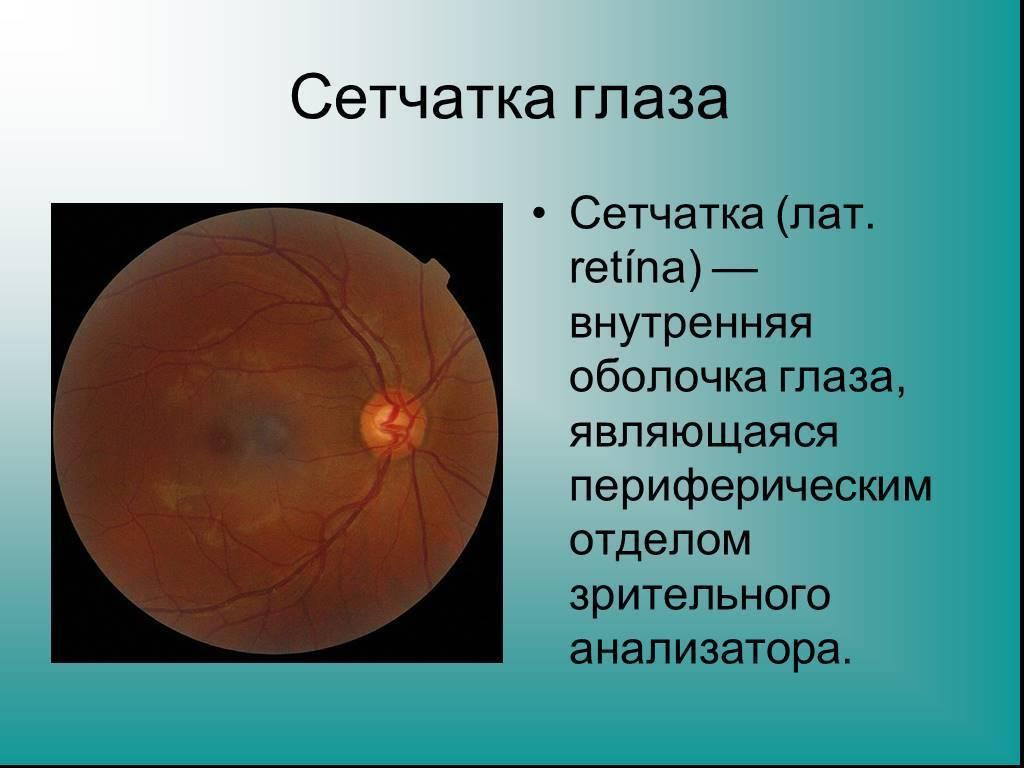 сетчатка глаза что это такое