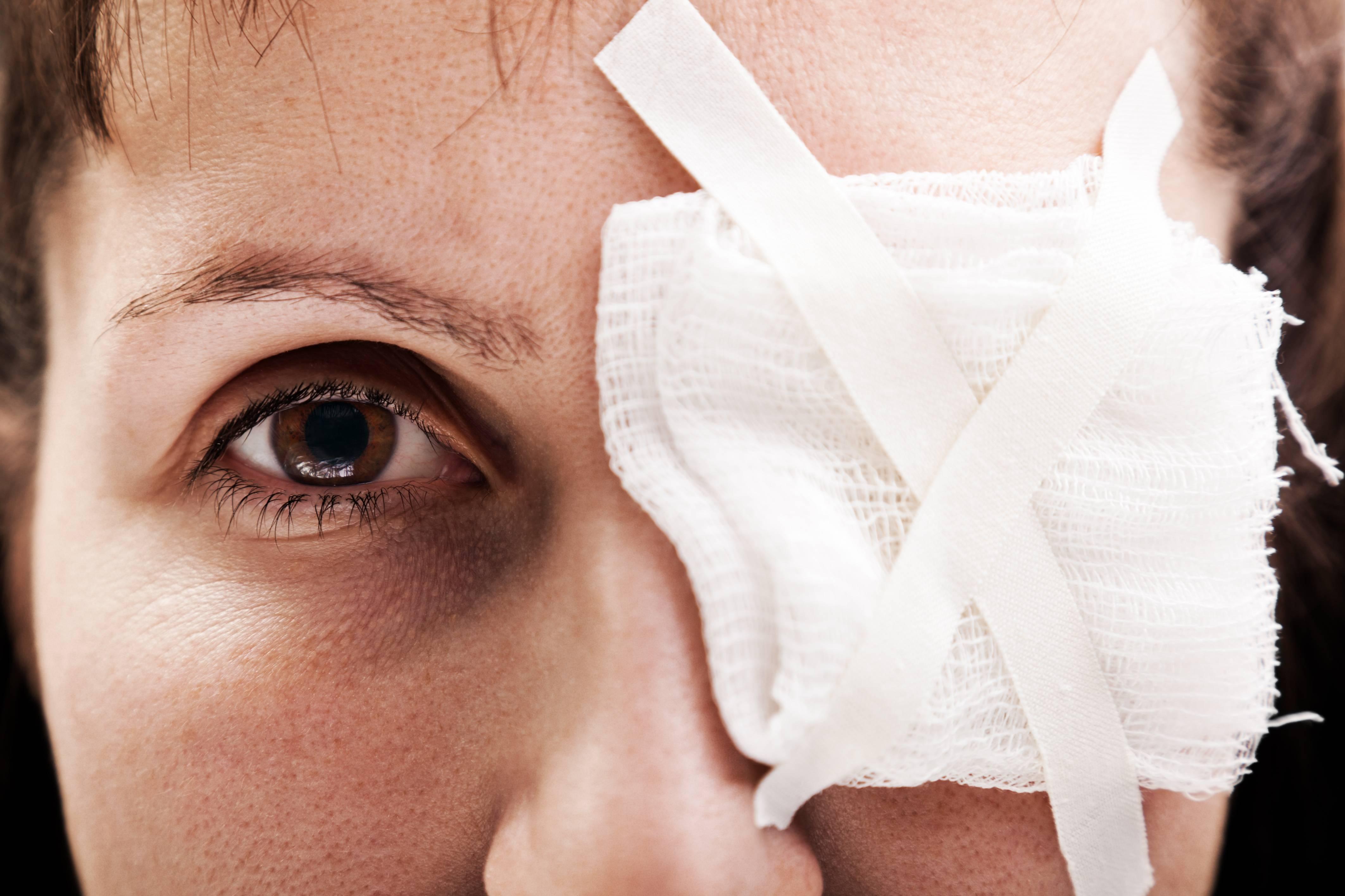Насмотрелся на сварку болят глаза— чем лечить дома