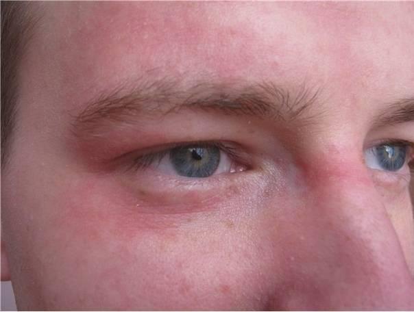 покраснение кожи вокруг глаз причины