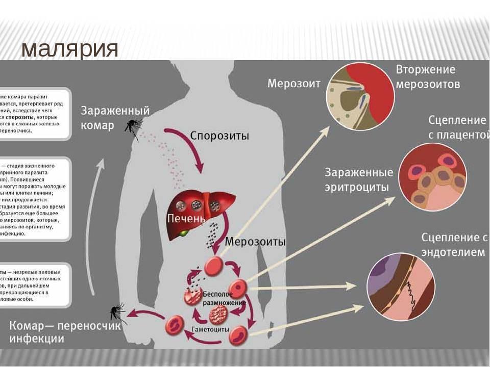 Малярия: как передается, симптомы, фото, диагностика, лечение