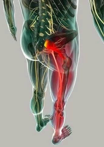 невралгия седалищного нерва симптомы