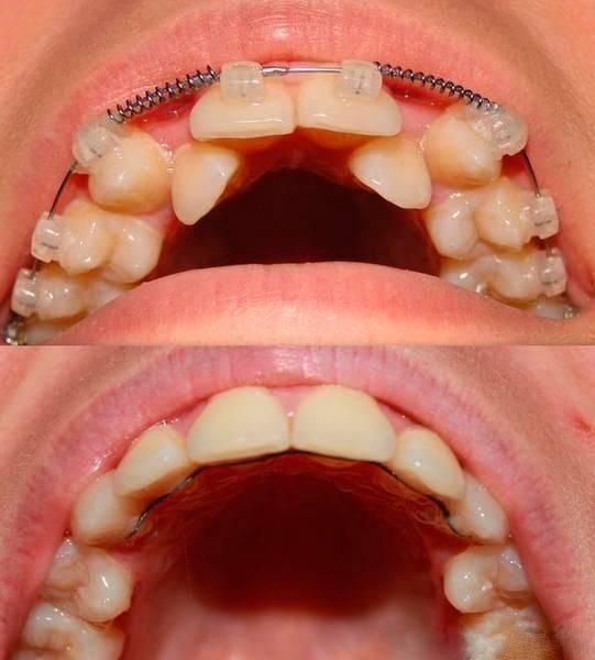 Болят зубы с брекетами, что делать | как снять боль от брекет-системы 8 советов