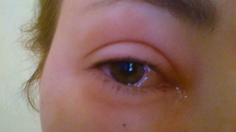 Инородное тело (песок) попало в глаз ребенку, что делать