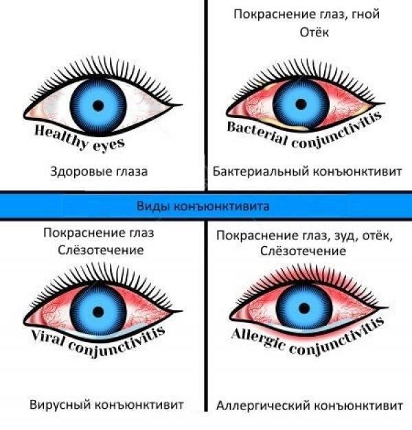 чем можно промывать глаза при коньюктивите ребенку