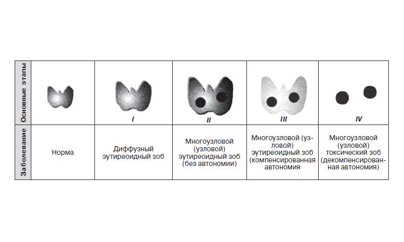 Смешанный зоб 2 ст | про щитовидку