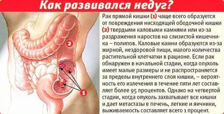 может геморрой перейти в рак прямой кишки