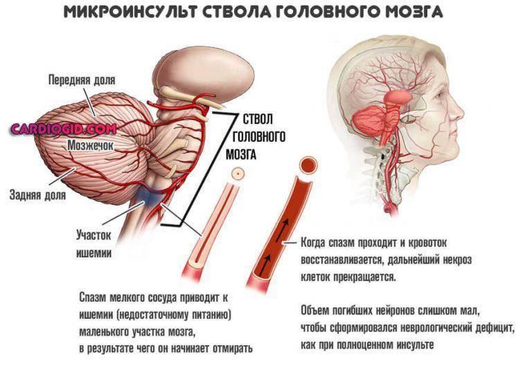 Атеросклероз сосудов головного мозга: симптомы и лечение — спросиврача
