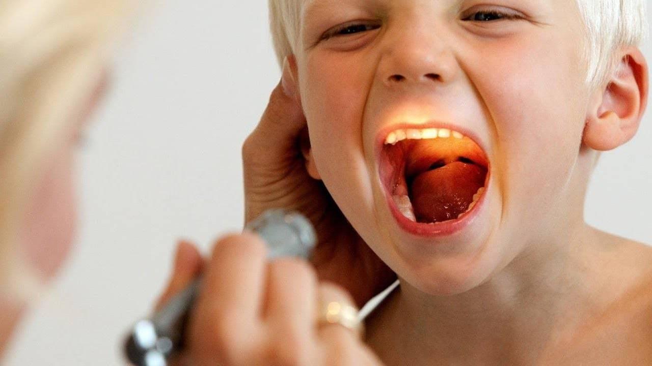 сильно красное горло у ребенка
