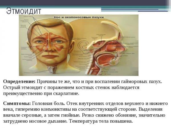 лечение этмоидита