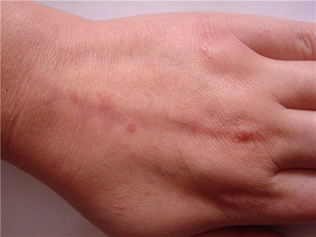 Чесотка на нервной почве: симптомы, признаки и лечение