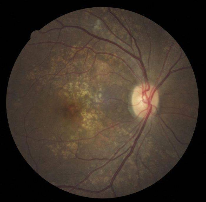 ангиосклероз сетчатки глаза лечение