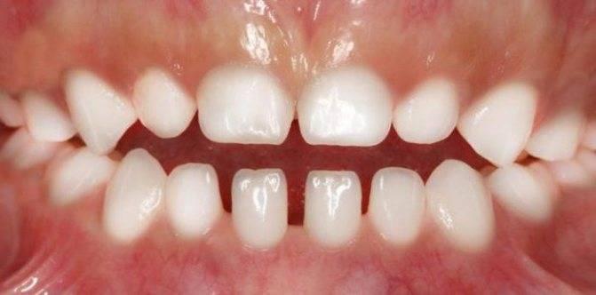 Особенности молочных зубов