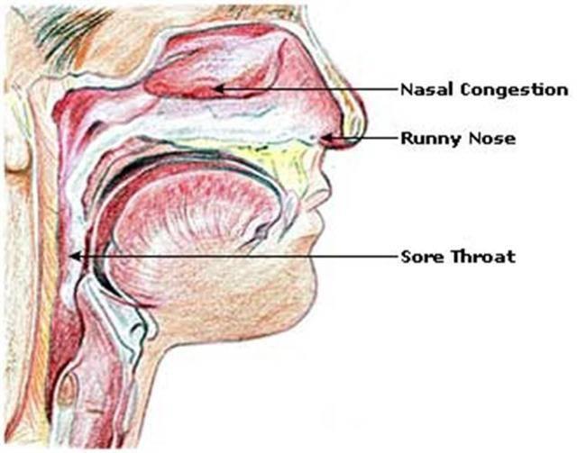 У грудничка мокрота в носоглотке:  популярные вопросы и ответы на них