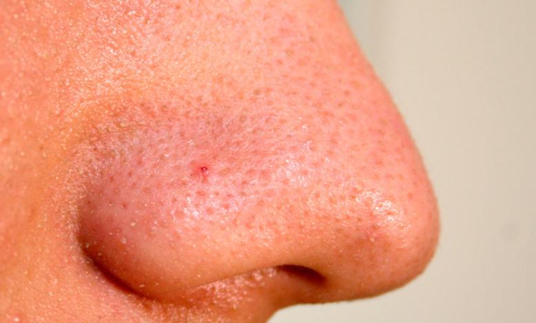 Болячки в носу: как лечить