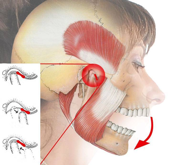Болит челюсть слева возле уха и больно жевать