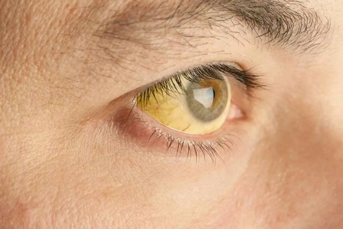 Как передается желтуха, заразна ли для человека, инкубационный период