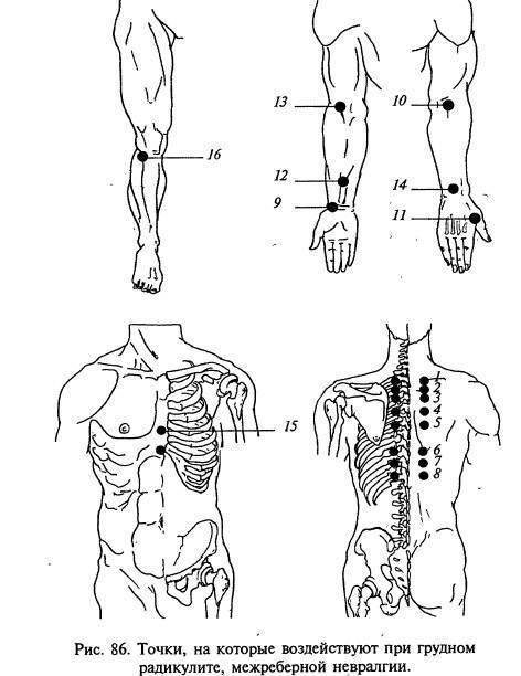 Можно ли делать массаж при межреберной невралгии: инструкция, как его сделать дома