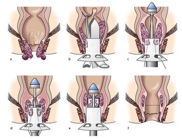 Лечим осложнение геморроя — тромбоз: техника тромбэктомии
