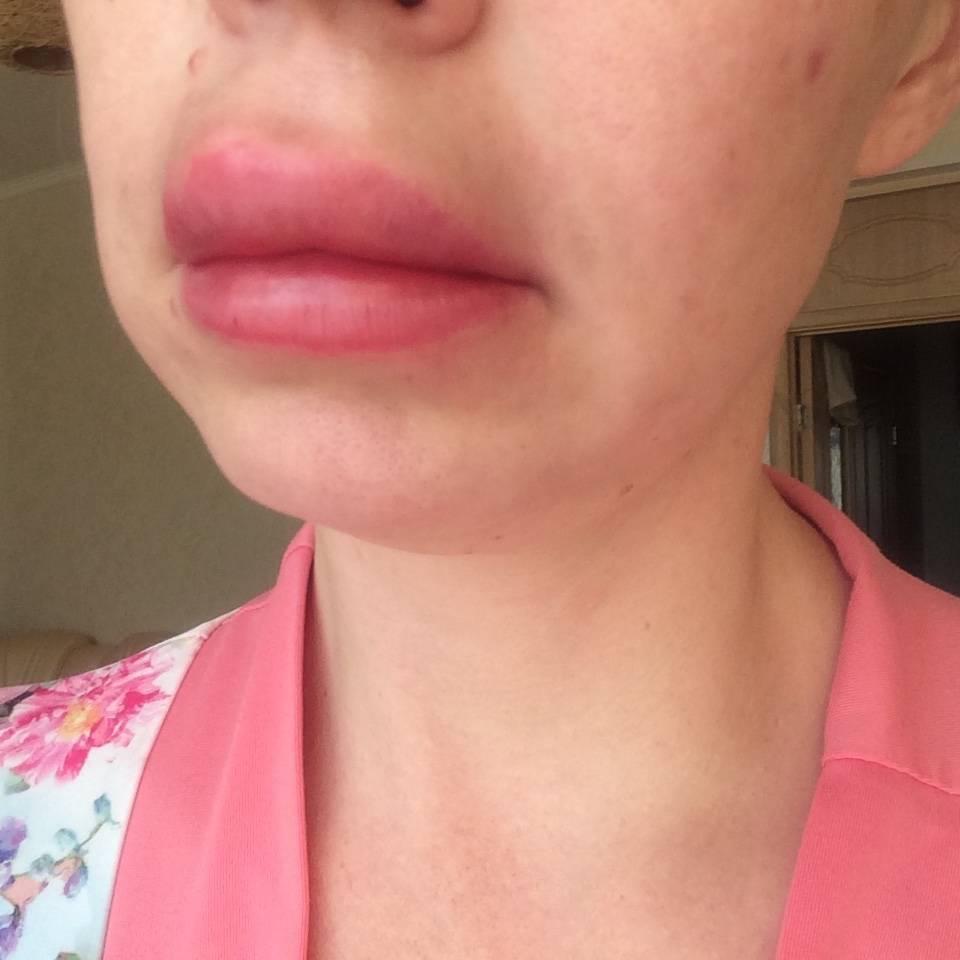 Распухла губа от герпеса: как лечить?