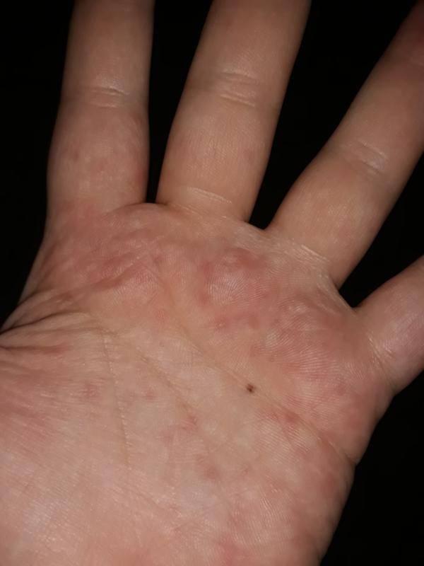 чесотка на руках лечение
