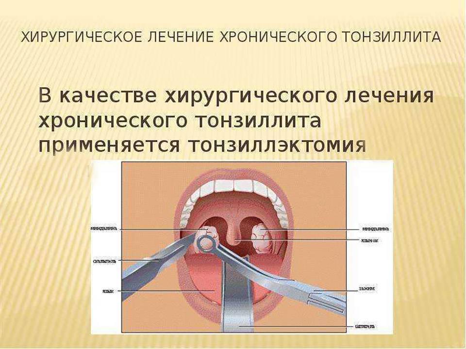 Чем опасен тонзиллит [какие органы страдают, осложнения]