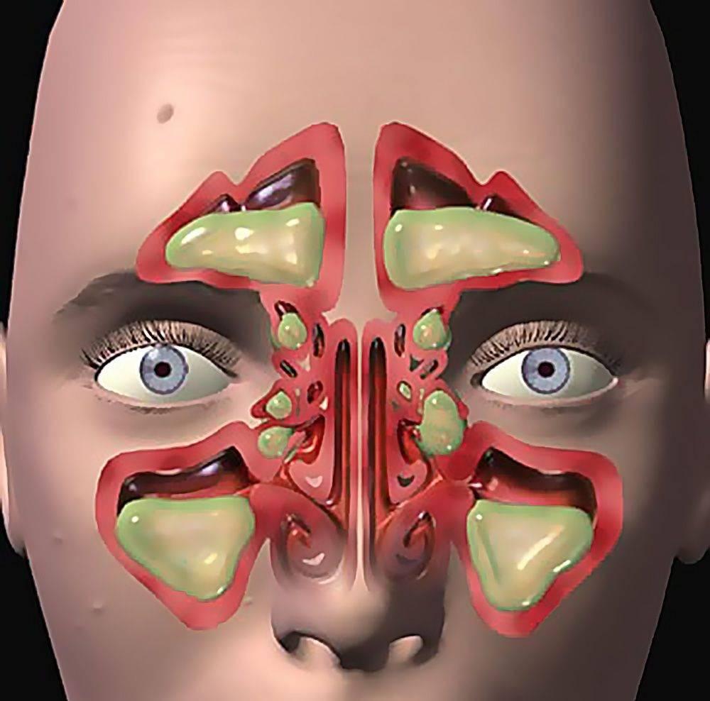 Болит лоб при насморке: причины и лечение