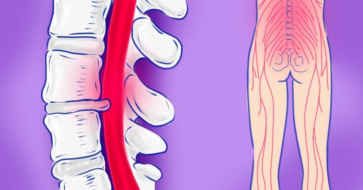 Невралгия поясничная симптомы лечение