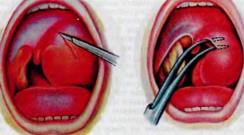 Как снять сильный отек в горле из за ангины