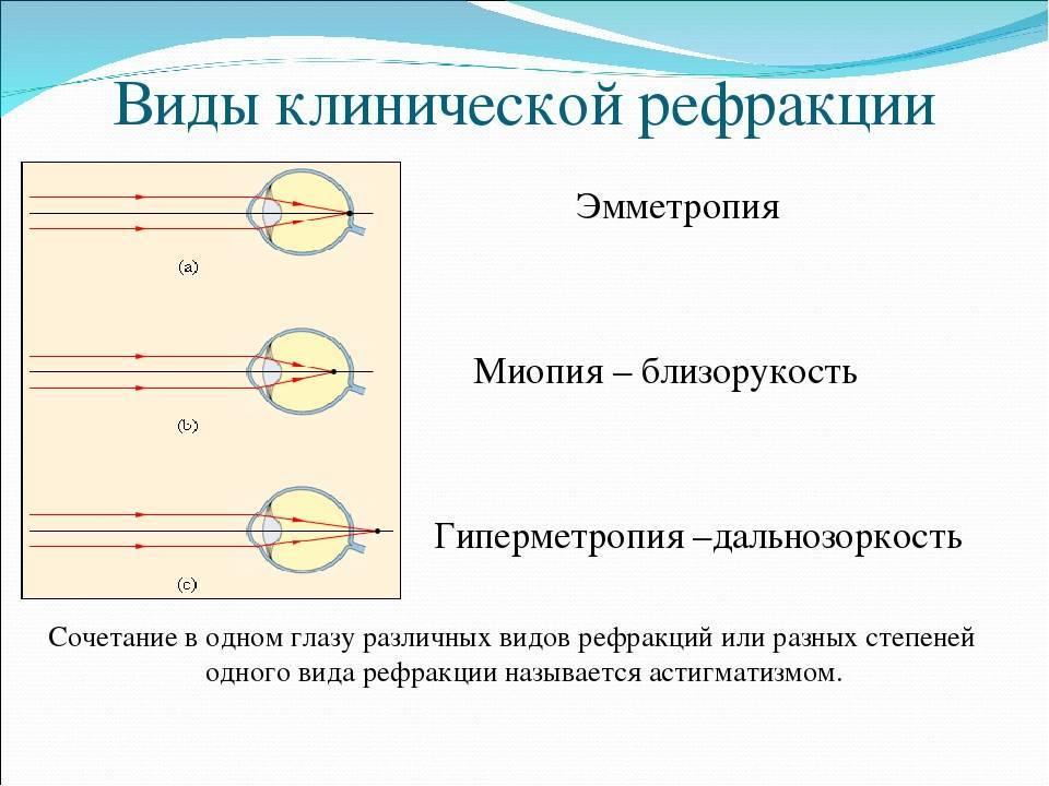 Рефрактометрия глаза в офтальмологии - методики