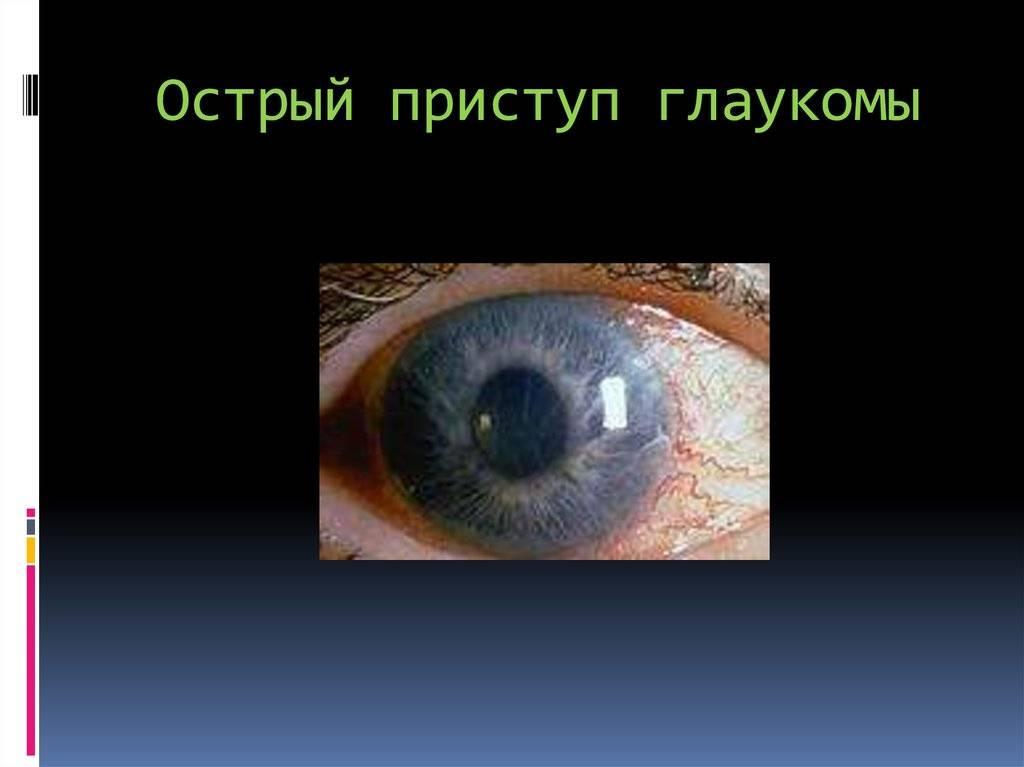 острый приступ глаукомы неотложная помощь