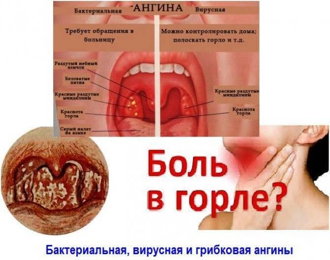 Стрептококковая инфекция у детей: причины, симптомы и лечение