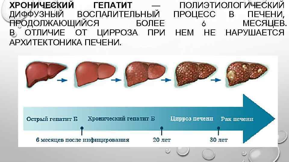 можно ли заразиться циррозом печени от больного