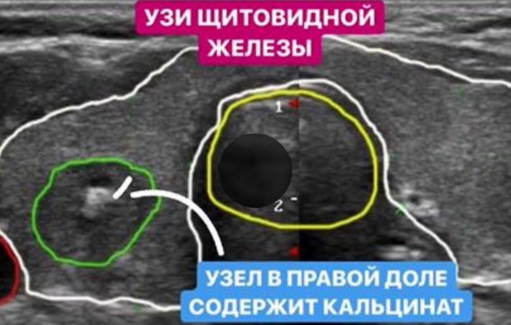 микрокарцинома щитовидной железы