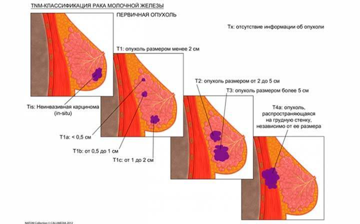 Злокачественная опухоль молочной железы
