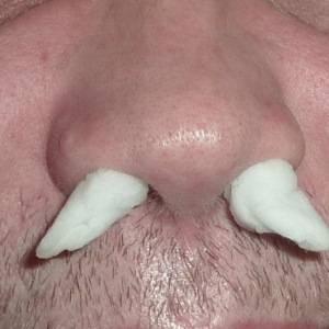 грибы в носу симптомы